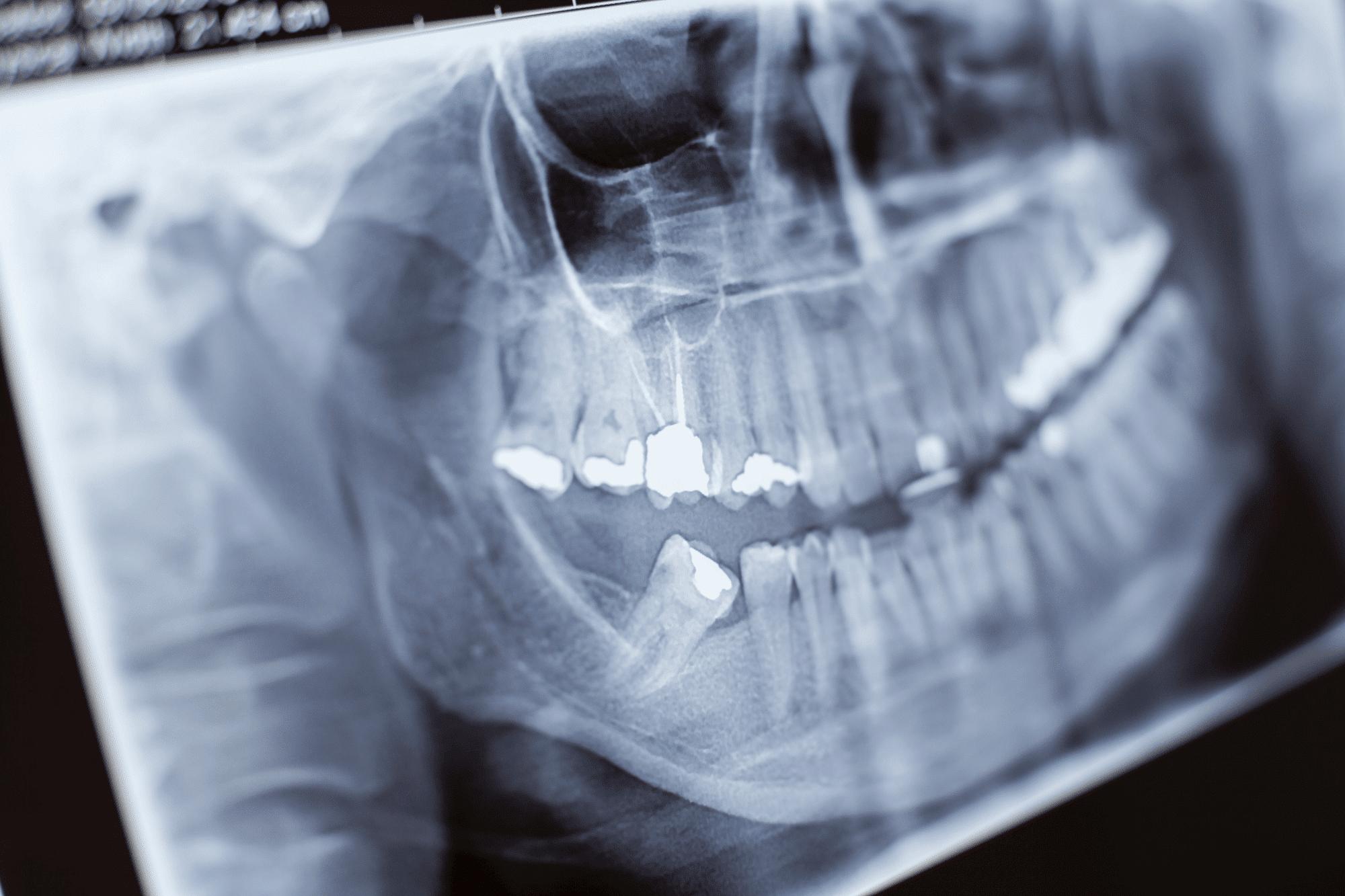 notdienst Zahnarzt berlin