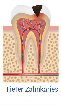 tiefer-zahnkaries