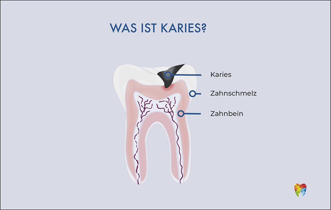 was-ist-karies