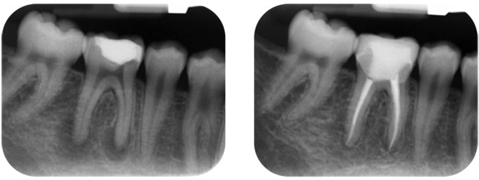 Wurzelbehandelter Zahn abgebrochen