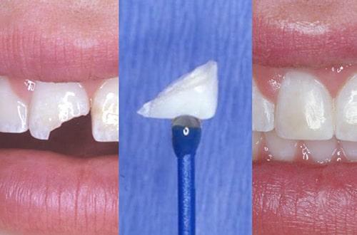 Zahnstück Ankleben