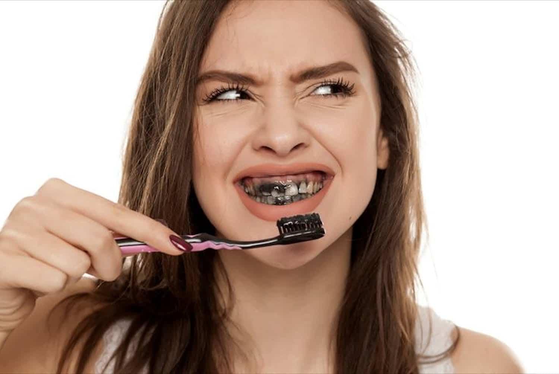 Aktivkohle Zahnpasta