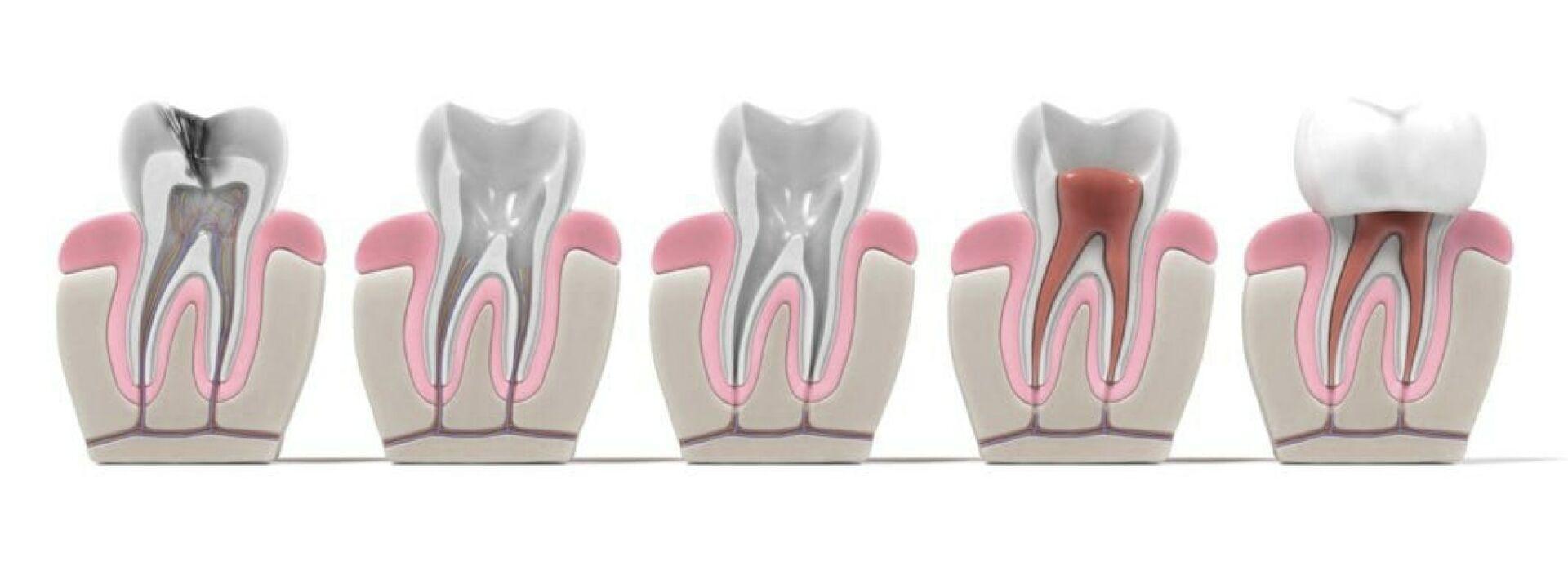Wurzelbehandlung bei einer Zahnwurzelentzündung