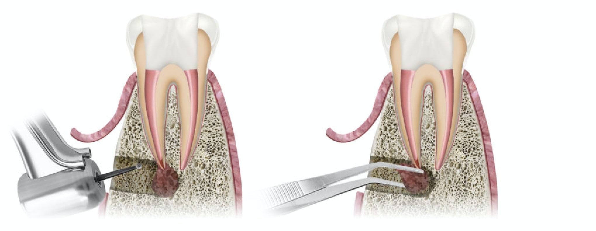 Wurzelspitzenresektion bei Zahnwurzelentzündung