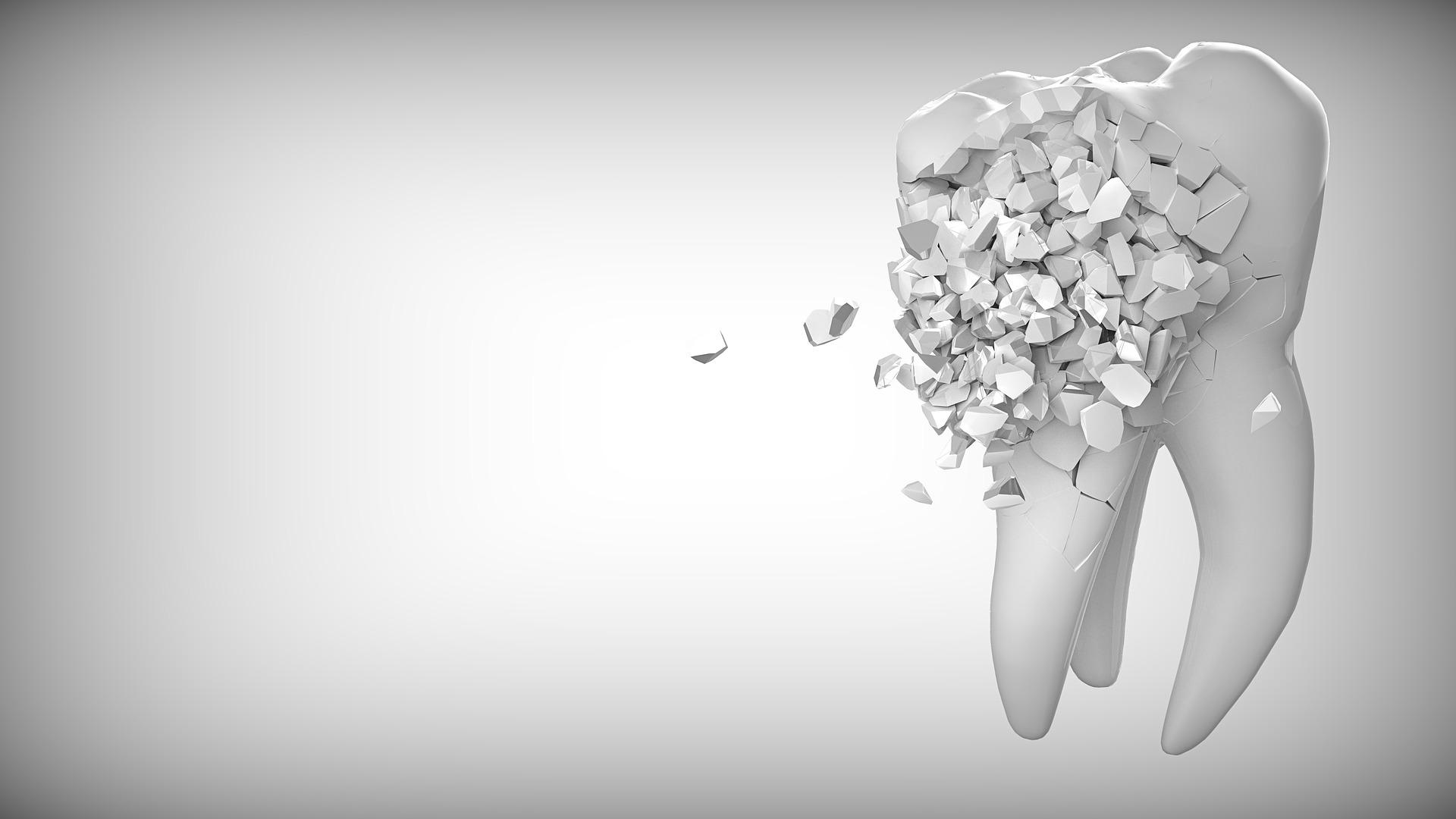 Zahnfüllung fällt raus